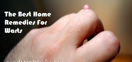 The Best Home Remedies For Warts