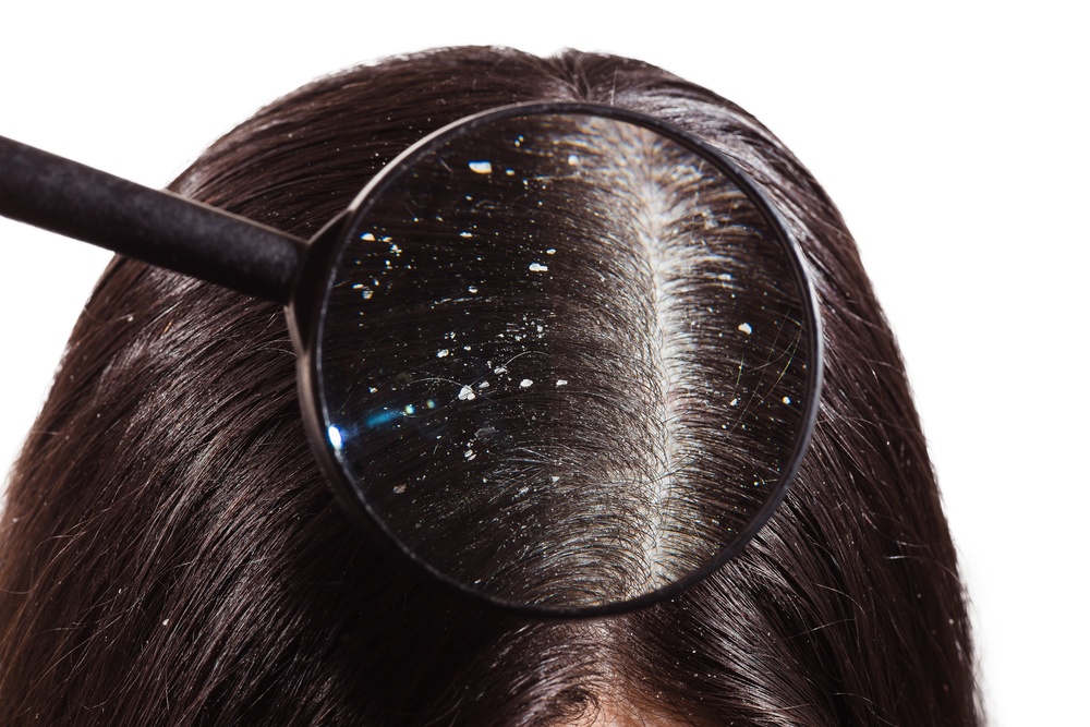 a look through a magnifying glass at the dandruff on dark hair
