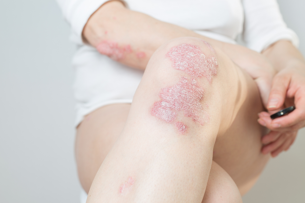 Acute psoriasis on the knees, body, elbows of woman