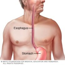 Esophagus, Esophageal Cancer, heartburn, preventative medicine