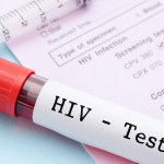 Free HIV Testing Locations