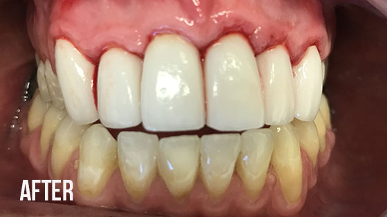 Gorgeous Smile Dental - Lumineers After 5.1