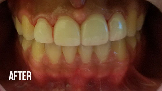 Gorgeous Smile Dental - Lumineers After 7.1