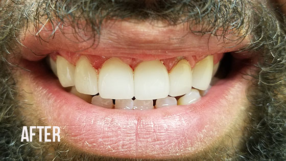 Gorgeous Smile Dental - Lumineers After 8