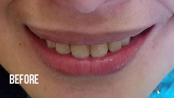 Gorgeous Smile Dental - Lumineers Before 1