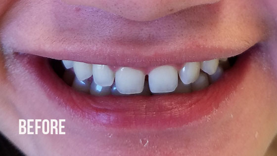 Gorgeous Smile Dental - Lumineers Before 2
