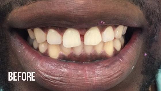 Gorgeous Smile Dental - Lumineers Before 3