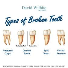 Types-of-Cracked-Tooth.jpg