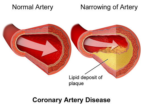 How LDL Cholesterol Becomes Atherosclerotic Plaque