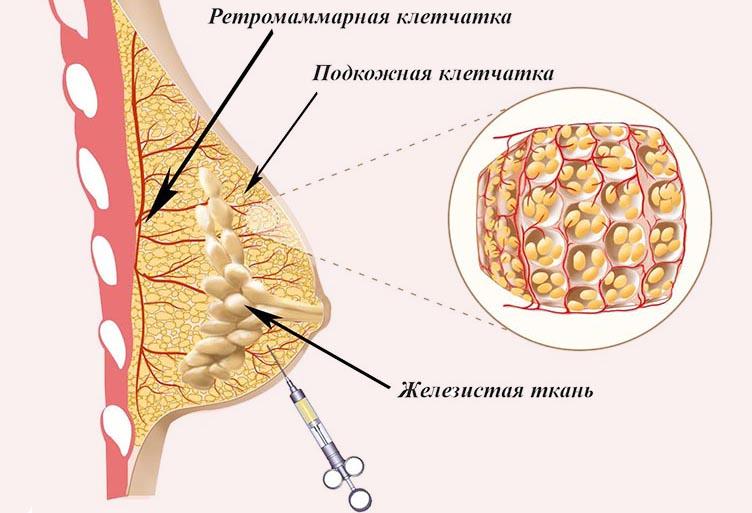 Недоразвитие молочных желез. Что такое гипоплазия (недоразвитие) молочных желез