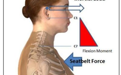 Neck Injury of Small Stature Females in Frontal Impacts
