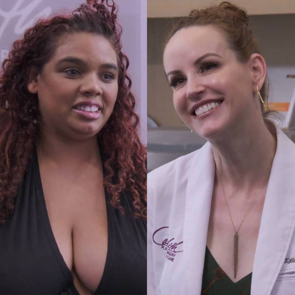 """Dr. Kelly Killeen Transforms Size M Breasts in """"Biggest"""" Reduction to Date on Dr. 90210"""