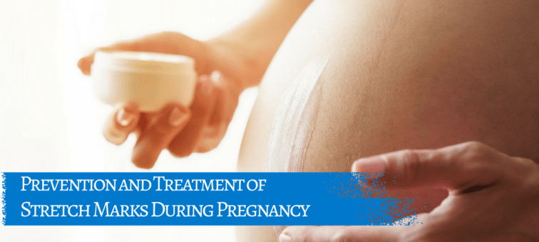 Prevention and Treatment of Stretch Marks During Pregnancy