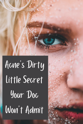 There's a big problem with how we treat acne today, and it's wrapped up in acne's little secret your doctors won't admit.