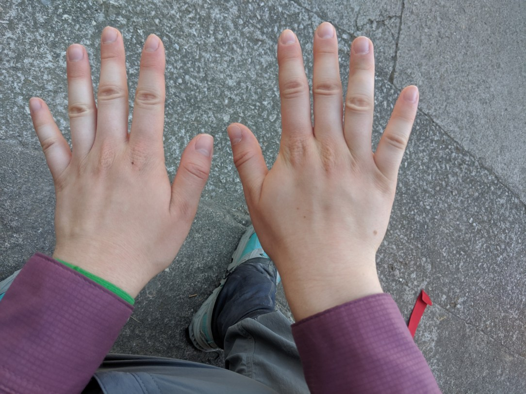 swollen fingers, pilgrim, hikers, pilgrimage