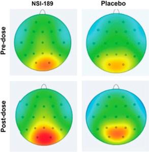 NSI-189 - działanie przeciwdepresyjne i zmiana fal alfa w mózgu