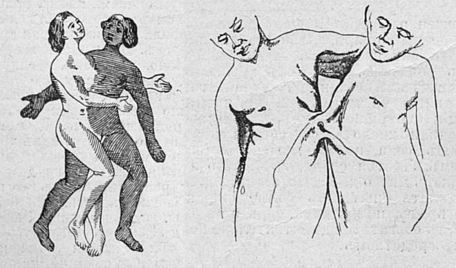 Близнецы-девушки разного цвета кожи; соединение сиамских близнецов