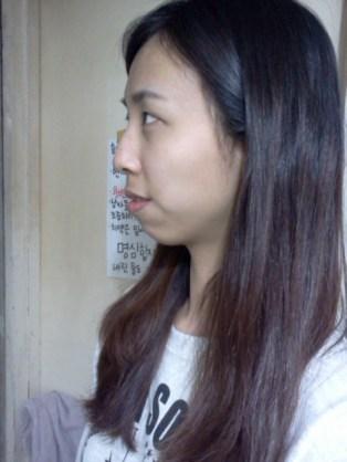 2010년 4월 14일 수술전 (6)