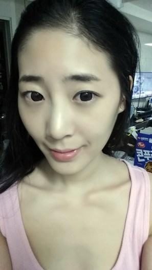 20150917_234321_이혜민_수술전_피부보정