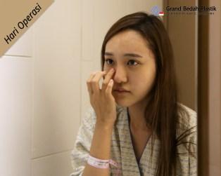 인도네시아-박소영-수술당일-1