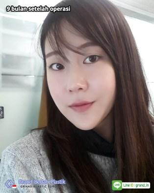인도네시아-김태연-수술후9개월