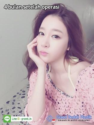 인도네시아_김민영(한지은)_수술후4개월1