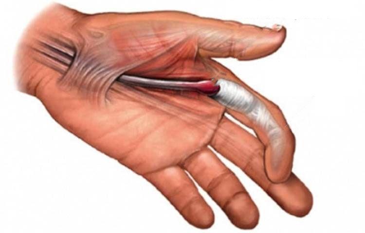 Medio dedo el derecha de la en dolor tengo mano