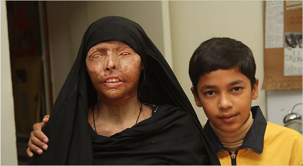 Acid attacks and wife burnings are common in parts of Asia because the victims are the most voiceless in these societies. Naeema Azar, above, was attacked by her husband after they divorced. Her 12-year-old son, Ahmed Shah, looks after her