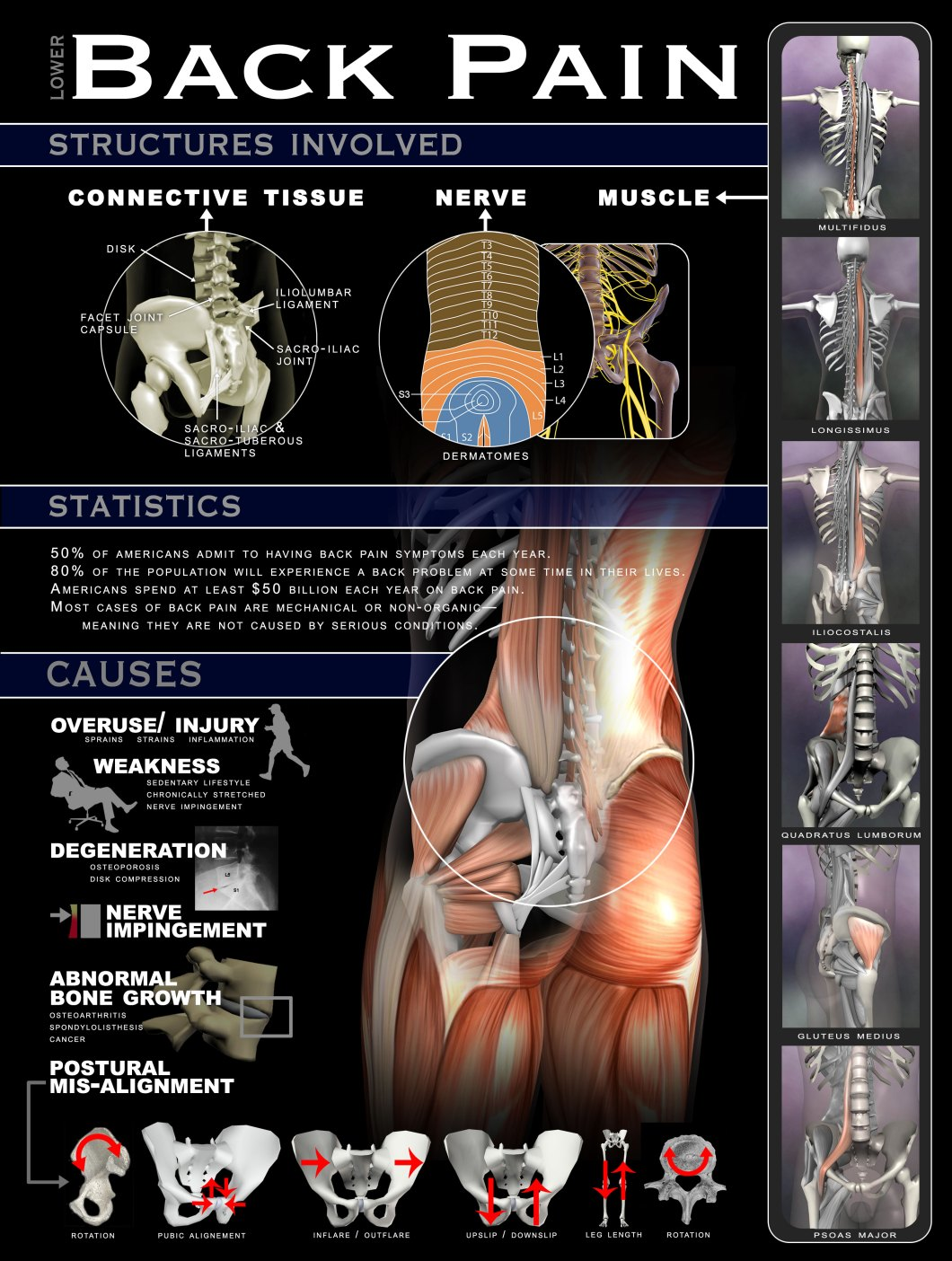 Lower Back Pain: Why, How and Where - Infographic