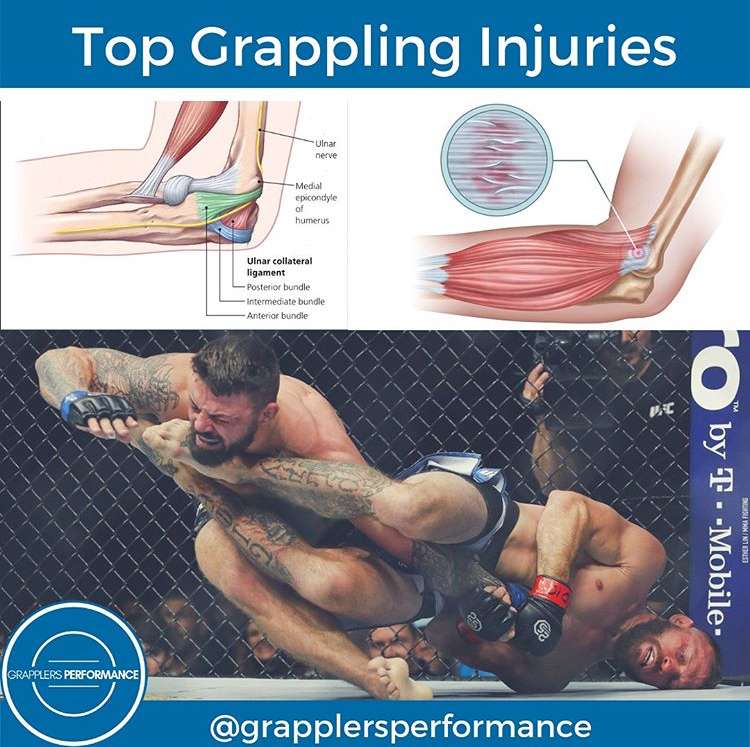 Common BJJ Injuries