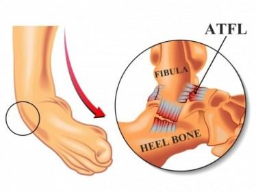 BJJ Ligament Injury