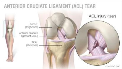 BJJ ACL Injury