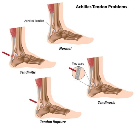 BJJ Tendon Injury