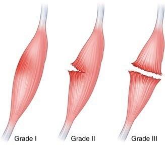 BJJ Muscle Injury