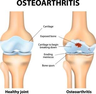 BJJ Joint Cartilage Injury
