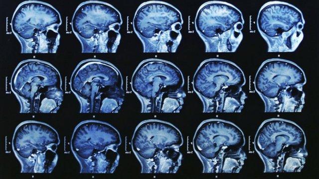efectul sexului asupra creierului