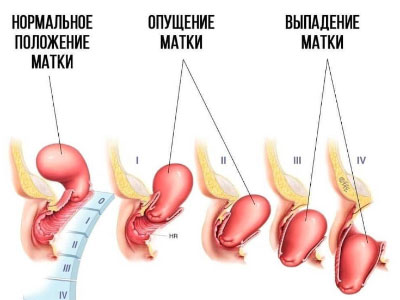 опущение матки