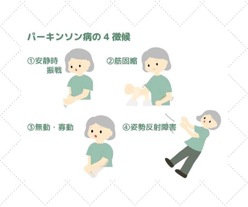 パーキンソン症状