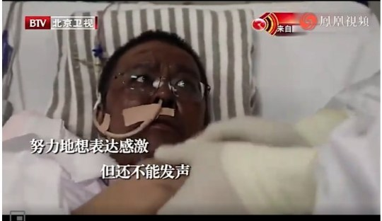 Dr Hu Weifeng after recovering from COVID-19