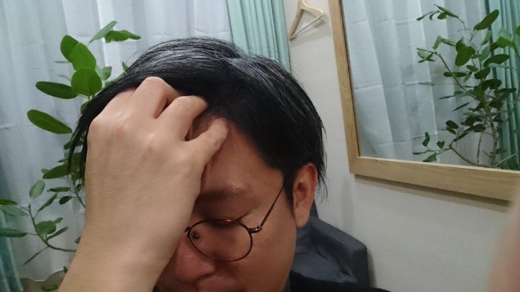 寝 過ぎ て 頭 が 痛い とき