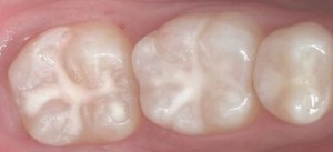 teeth with sealant