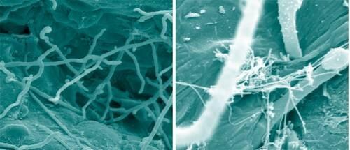 Investigan los hábitos reproductivos del hongo causante del pie de atleta