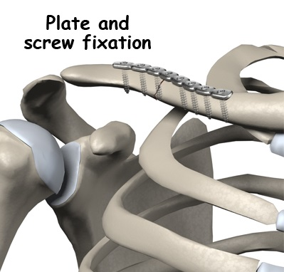 adult_shoulder_fx_clavicle_plate