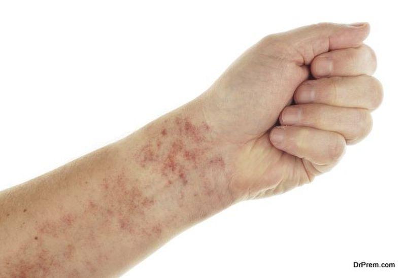 painful-rashes