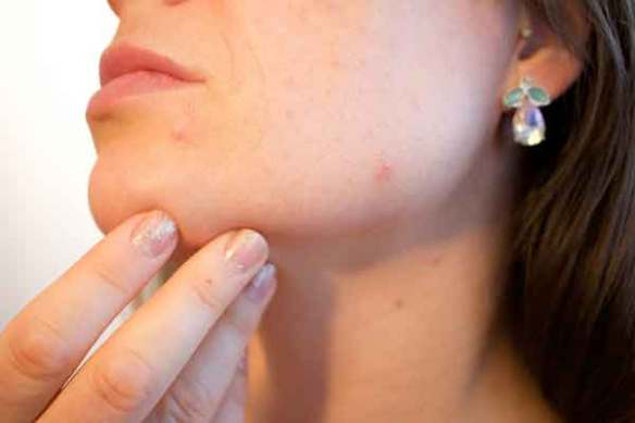 여드름-여드름 치료방법