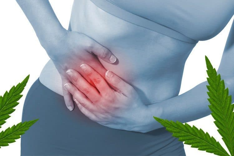 Treating Pelvic Pain With Cannabis