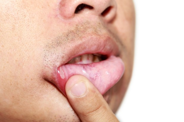how to get rid of cold sores inside mouth quickly