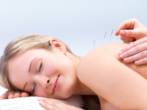beautiful woman getting acupuncture