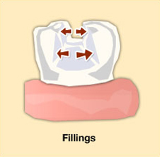Greenwood-Dental-fillings-illustration