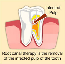 Greenwood-Dental-root_canal-illustration